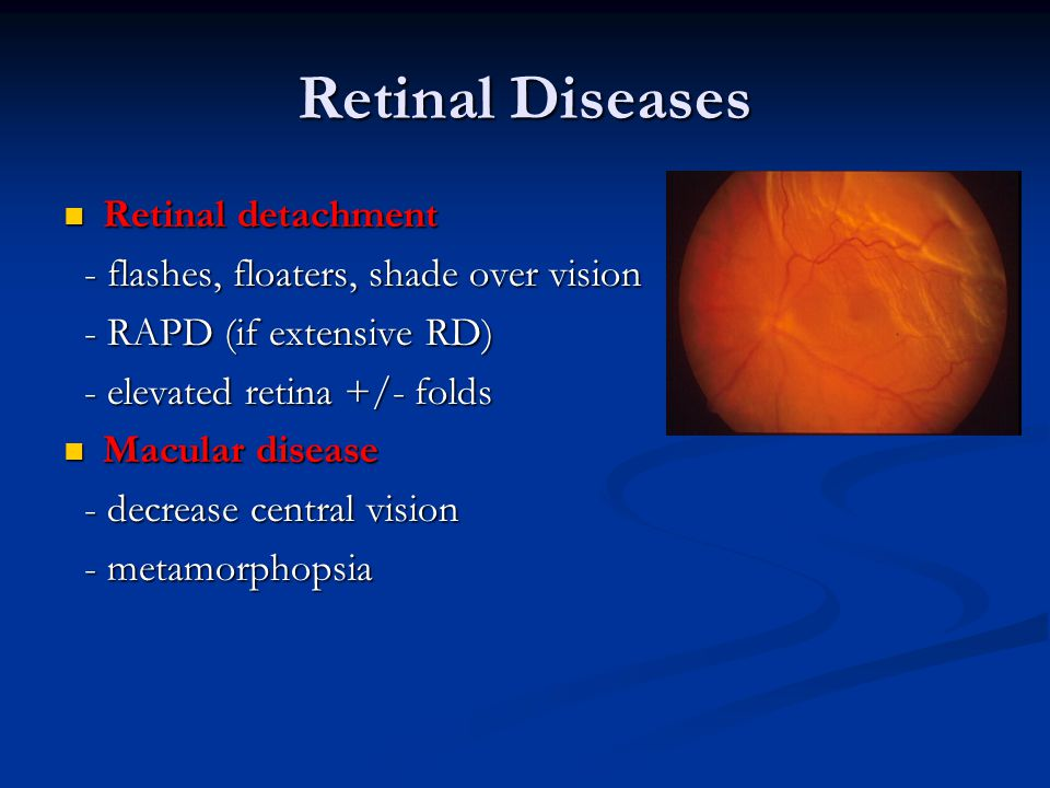Retinal Diseases Retinal detachment Retinal detachment - flashes, floaters, shade over vision - flashes, floaters, shade over vision - RAPD (if extens