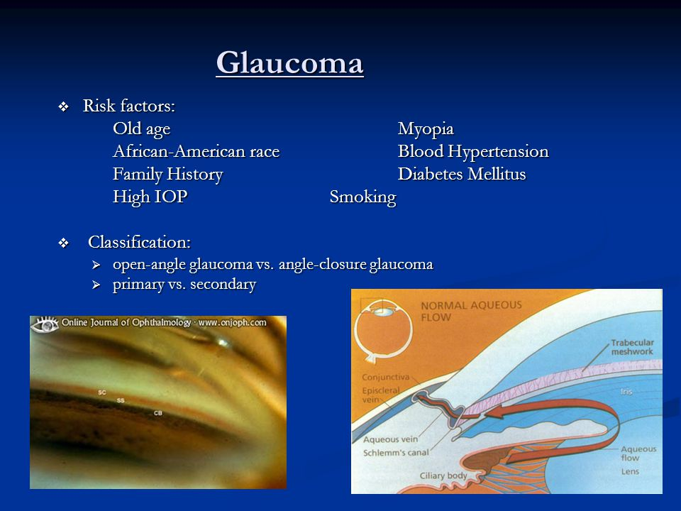 Glaucoma  Risk factors: Old ageMyopia African-American raceBlood Hypertension Family HistoryDiabetes Mellitus High IOPSmoking  Classification:  ope