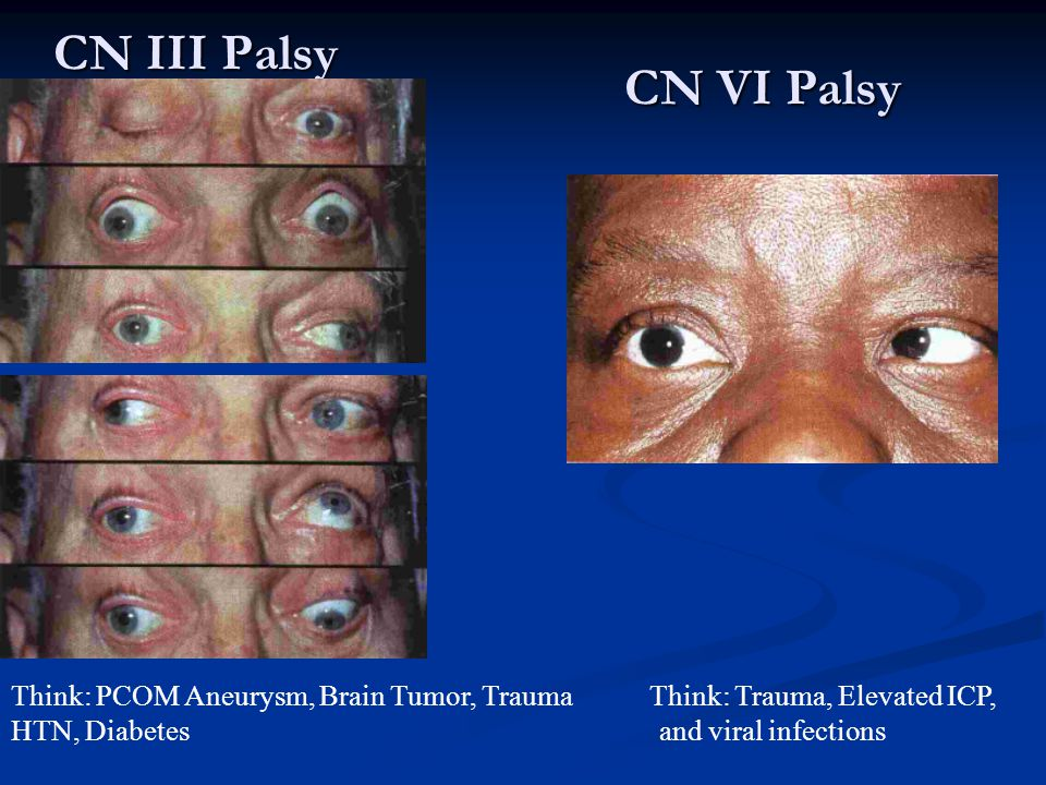 CN III Palsy Think: PCOM Aneurysm, Brain Tumor, Trauma Think: Trauma, Elevated ICP, HTN, Diabetes and viral infections CN VI Palsy