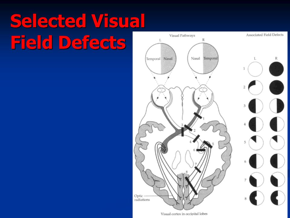 Selected Visual Field Defects