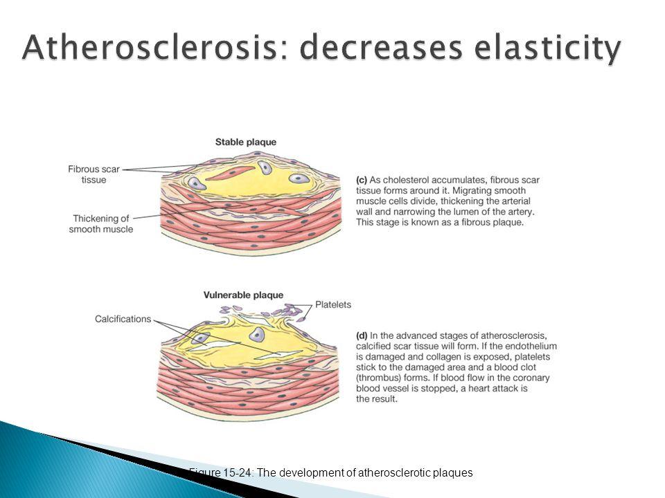 Figure 15-22: The baroreceptor reflex: the response to increased blood pressure