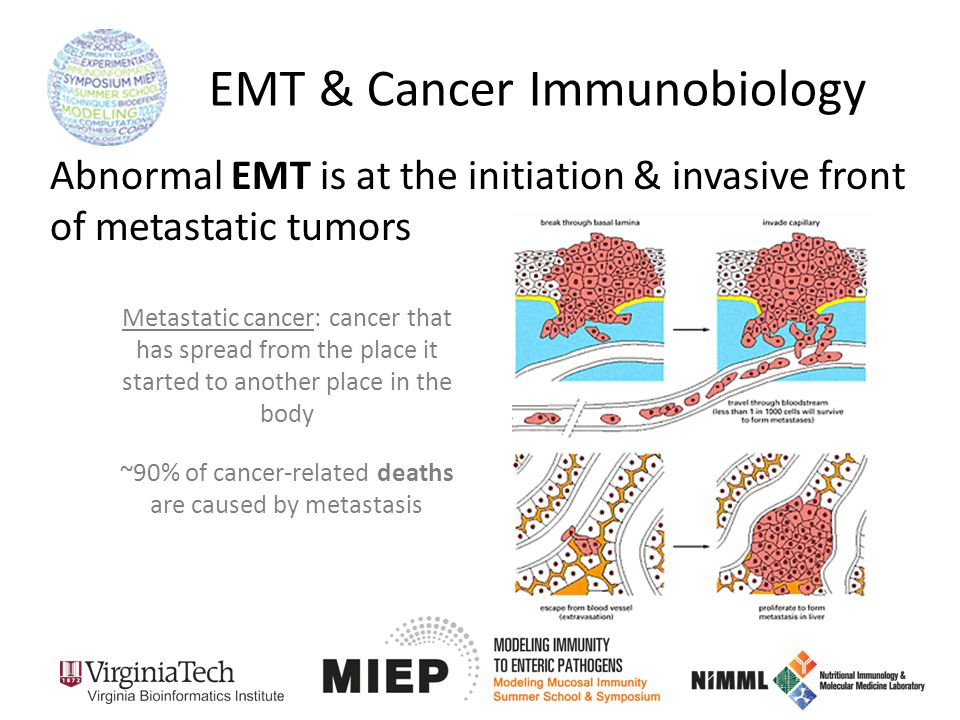EMT & Cancer Immunobiology Metastatic cancer: cancer that has spread from the place it started to another place in the body ~90% of cancer-related deaths are caused by metastasis Abnormal EMT is at the initiation & invasive front of metastatic tumors