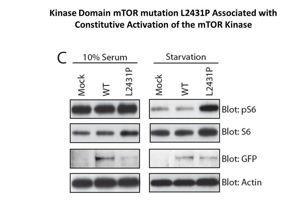 Kinase Domain mTOR mutation L2431P Associated with Constitutive Activation of the mTOR Kinase