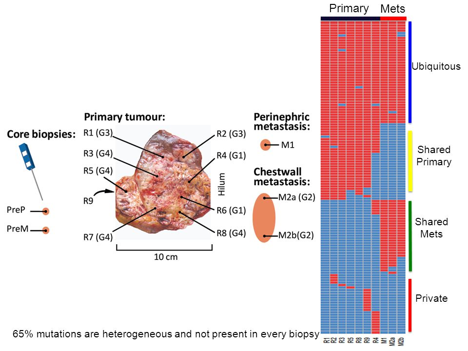 Ubiquitous Shared Primary Shared Mets Private 65% mutations are heterogeneous and not present in every biopsy Primary Mets