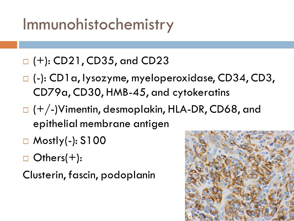 Immunohistochemistry  (+): CD21, CD35, and CD23  (-): CD1a, lysozyme, myeloperoxidase, CD34, CD3, CD79a, CD30, HMB-45, and cytokeratins  (+/-)Vimen