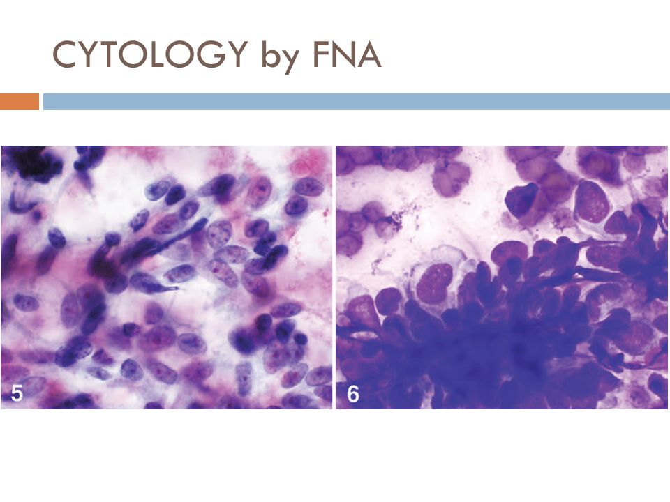 CYTOLOGY by FNA