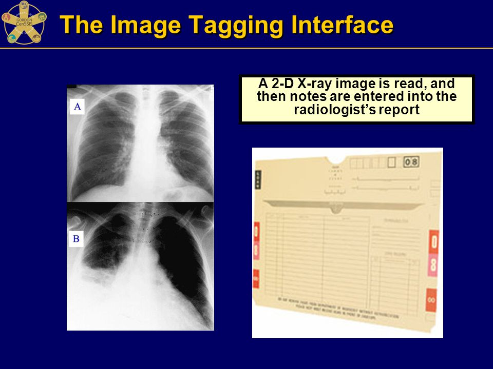 The Image Tagging Interface A 2-D X-ray image is read, and then notes are entered into the radiologist's report