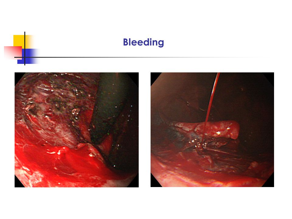 Endoscopic closure by metallic clips