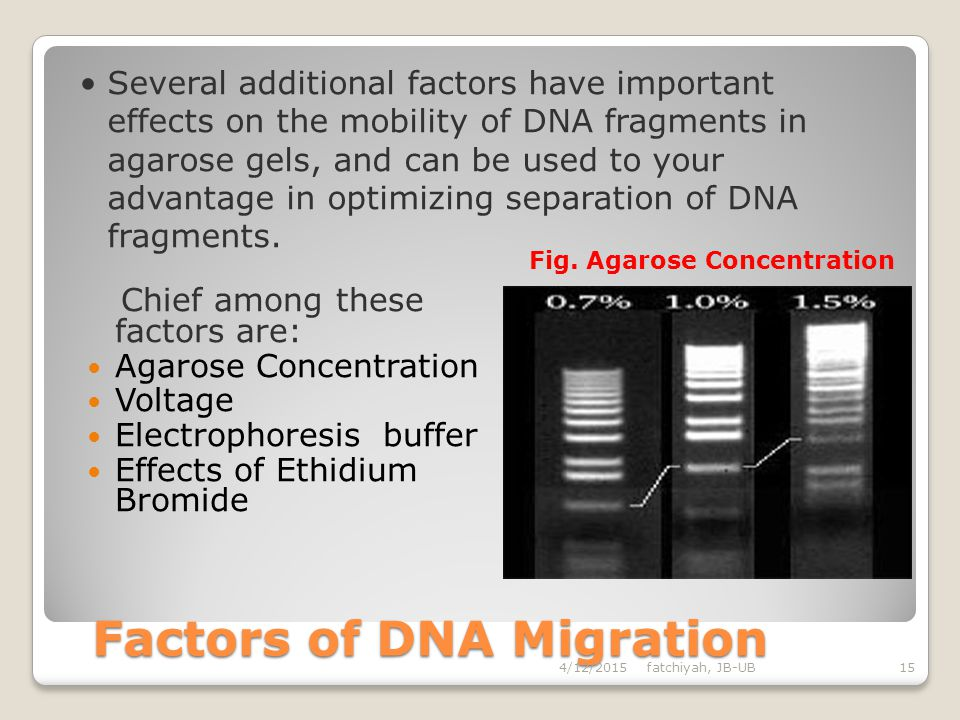 DNA Migration 4/12/2015fatchiyah, JB-UB14 largemoderatesmall Picture of DNA separation by gel electrophoresis M S