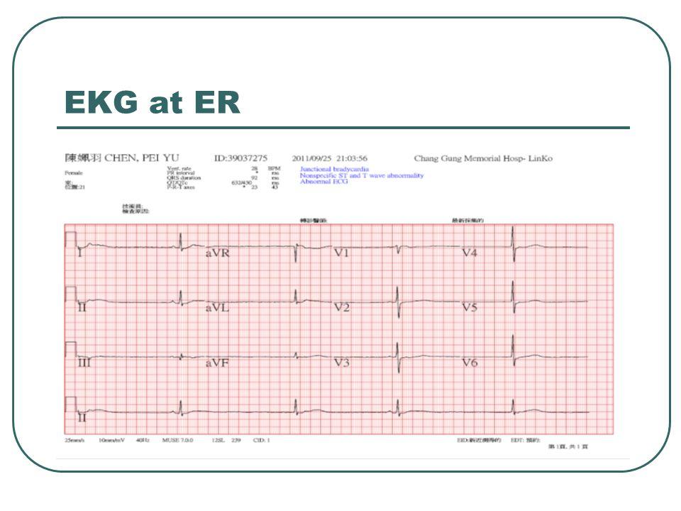 EKG at ER