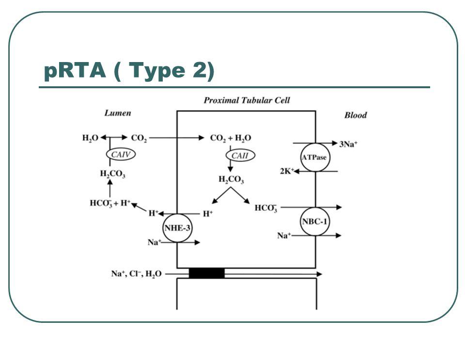 pRTA ( Type 2)