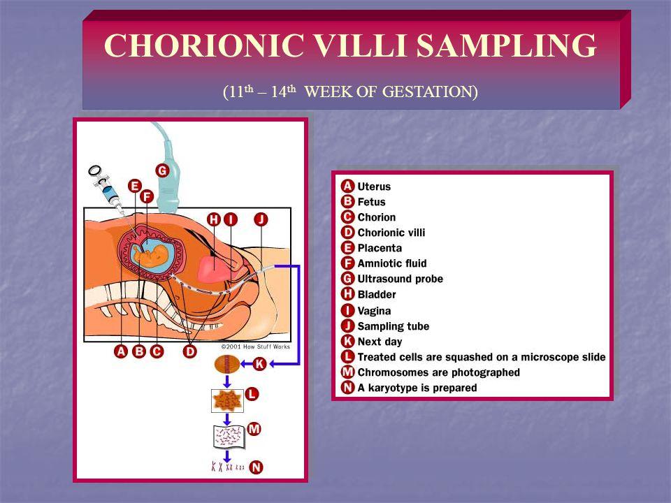 CHORIONIC VILLI SAMPLING (11 th – 14 th WEEK OF GESTATION)