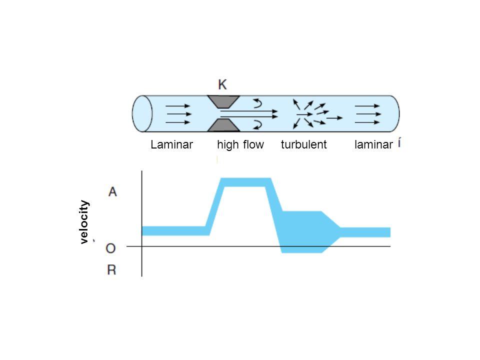 Laminar high flow turbulent laminar velocity