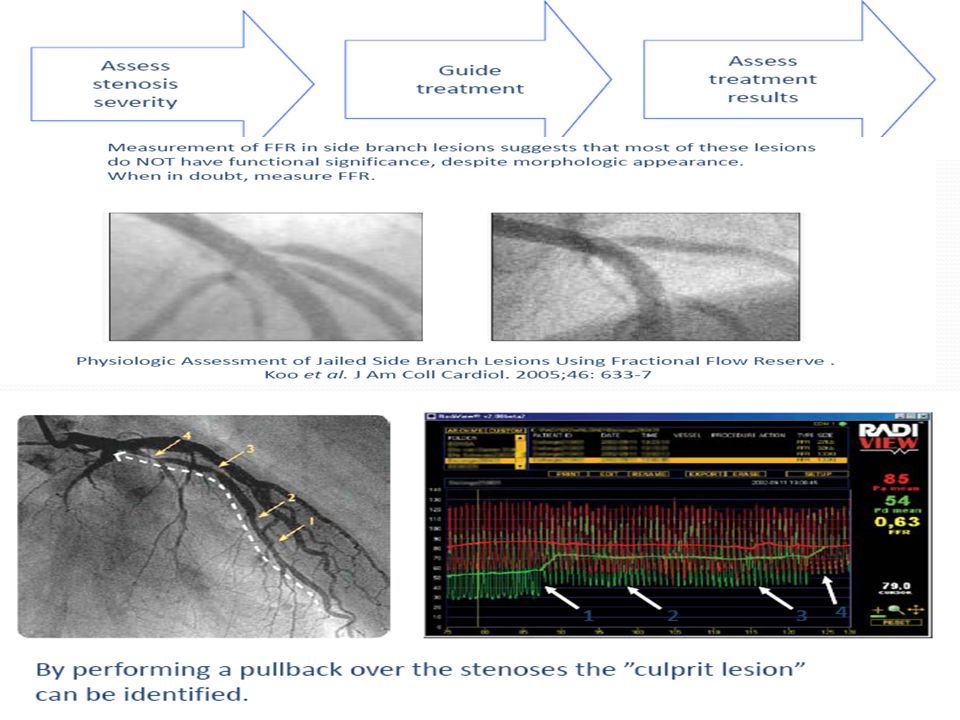 Decision making for intermediate lesions Decision regarding mutivessel PCI Serial lesions Diffuse disease Ostial or distal LM and ostial RCA lesions Side branch lesions ISR Prior MI Assess PCI results
