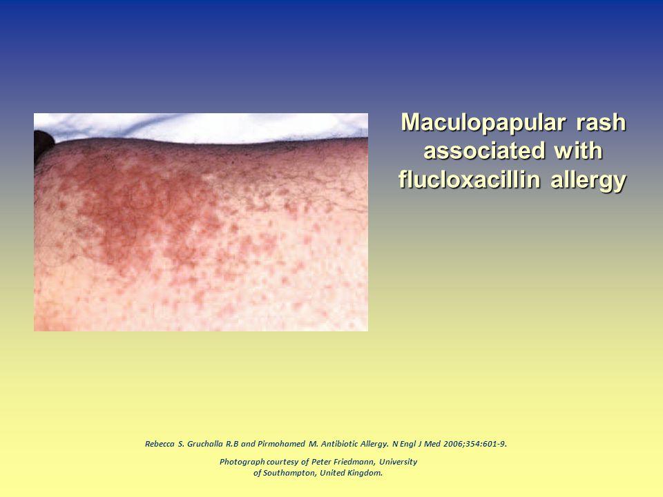 Photograph courtesy of Peter Friedmann, University of Southampton, United Kingdom. Rebecca S. Gruchalla R.B and Pirmohamed M. Antibiotic Allergy. N En