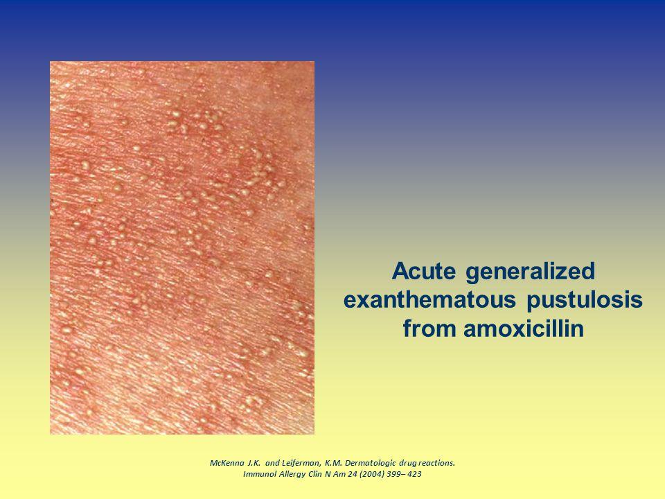 McKenna J.K. and Leiferman, K.M. Dermatologic drug reactions. Immunol Allergy Clin N Am 24 (2004) 399– 423 Acute generalized exanthematous pustulosis