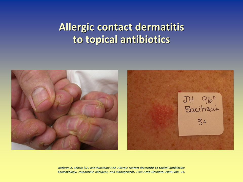Allergic contact dermatitis to topical antibiotics Kathryn A. Gehrig k.A. and Warshaw E.M. Allergic contact dermatitis to topical antibiotics: Epidemi