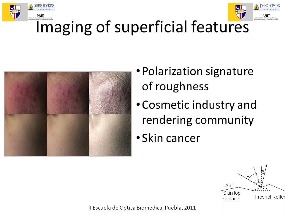 II Escuela de Optica Biomedica, Puebla, 2011 Imaging of superficial features Polarization signature of roughness Cosmetic industry and rendering community Skin cancer Fresnel Reflection    ii ss Air Skin top surface