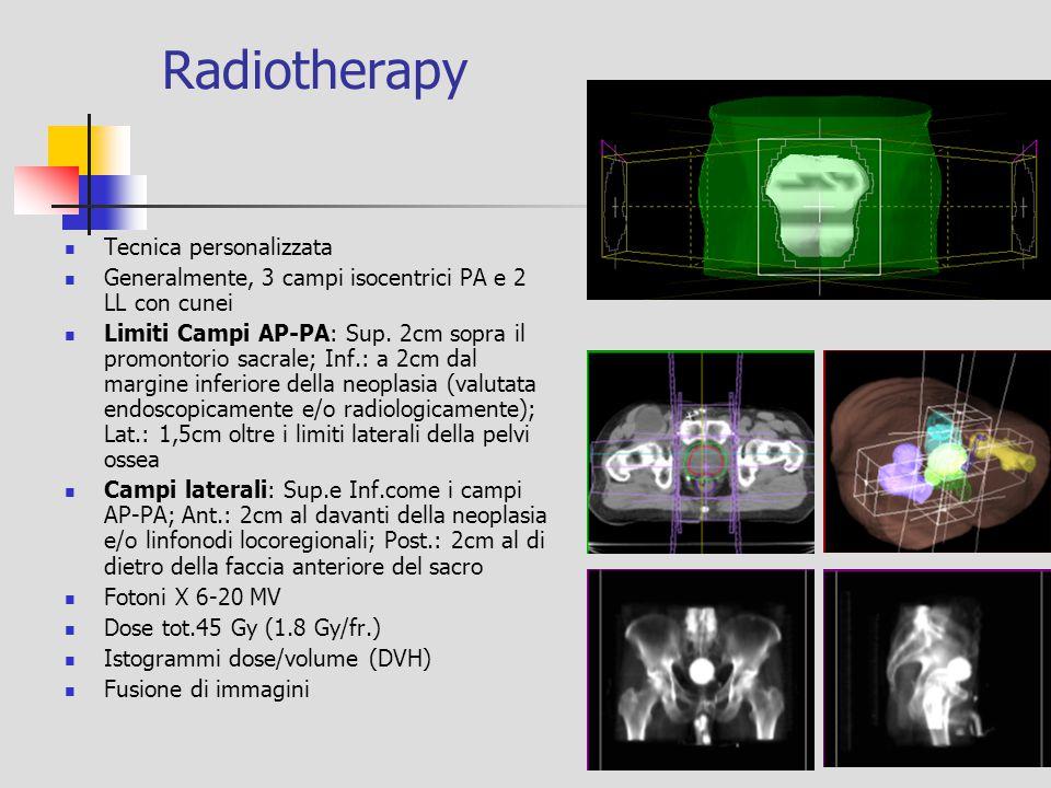 Radiotherapy Tecnica personalizzata Generalmente, 3 campi isocentrici PA e 2 LL con cunei Limiti Campi AP-PA: Sup. 2cm sopra il promontorio sacrale; I