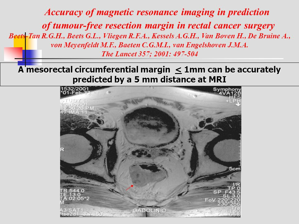 Accuracy of magnetic resonance imaging in prediction of tumour-free resection margin in rectal cancer surgery Beets-Tan R.G.H., Beets G.L., Vliegen R.