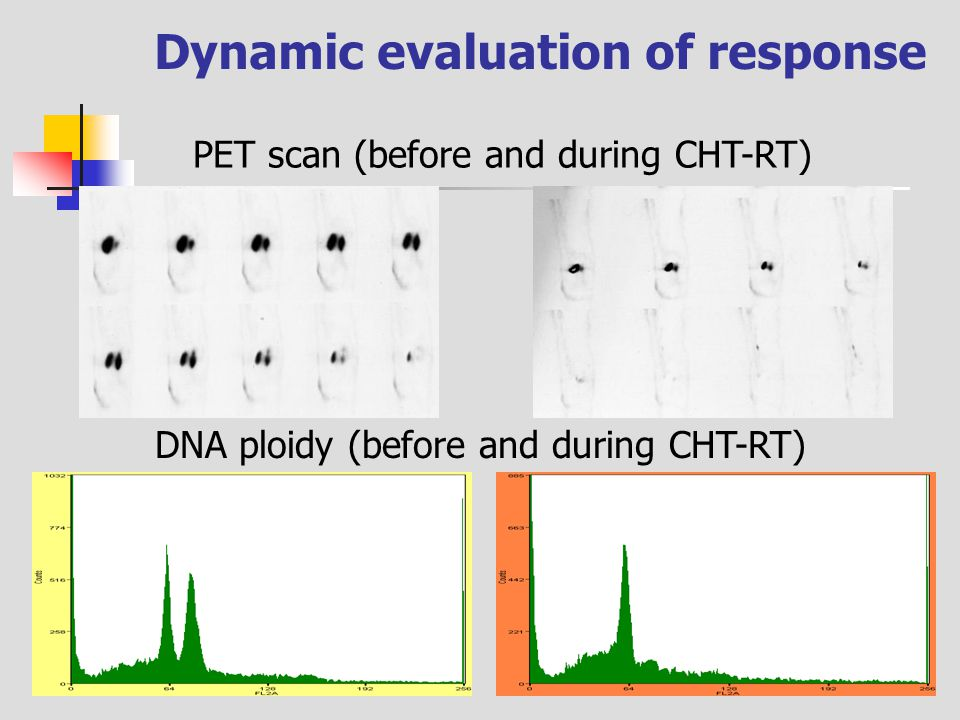 DNA ploidy (before and during CHT-RT) Dynamic evaluation of response PET scan (before and during CHT-RT)