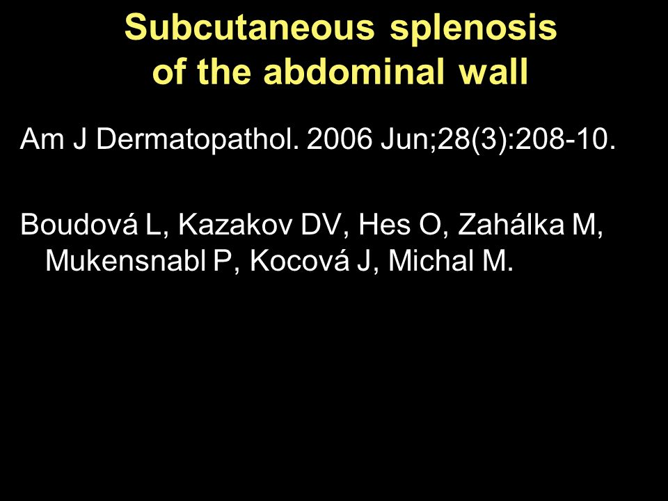 Subcutaneous splenosis of the abdominal wall Am J Dermatopathol.