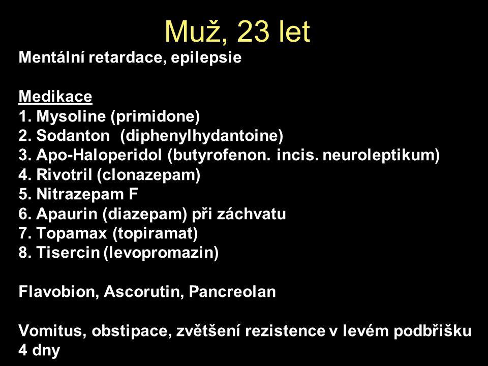 Mentální retardace, epilepsie Medikace 1. Mysoline (primidone) 2.