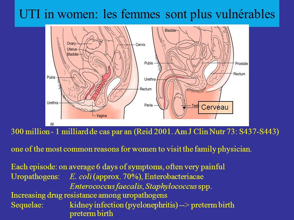 UTI in women: les femmes sont plus vulnérables Cerveau 300 million - 1 milliard de cas par an (Reid 2001.