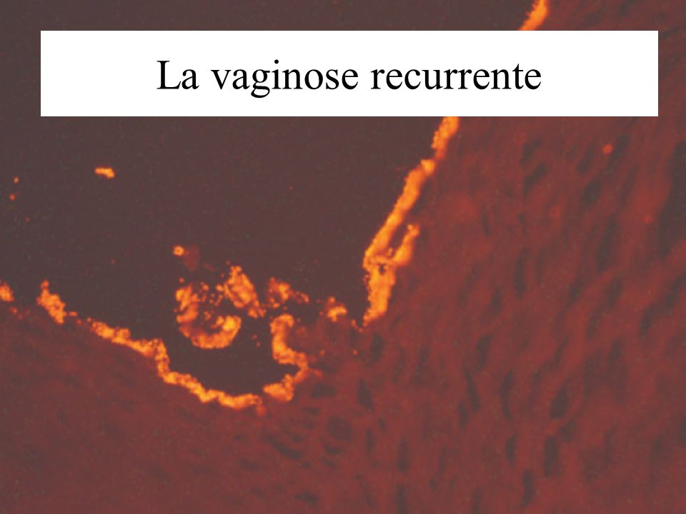 La vaginose recurrente