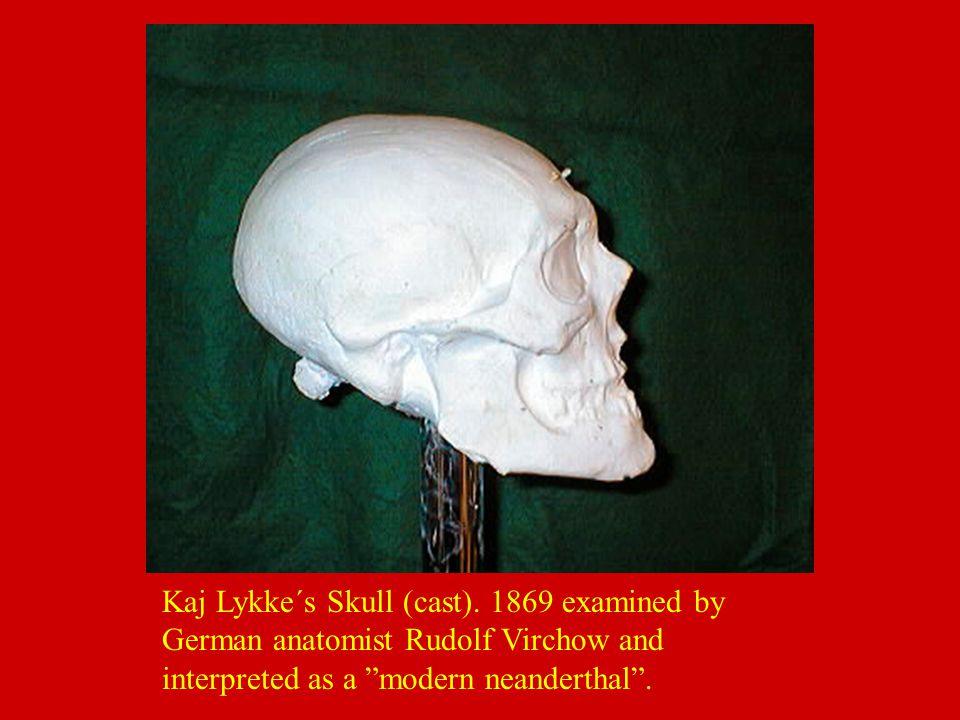 "Kaj Lykke´s Skull (cast). 1869 examined by German anatomist Rudolf Virchow and interpreted as a ""modern neanderthal""."