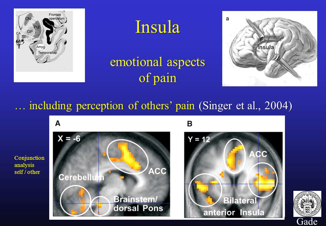 19 Gade Insula emotional aspects of pain … including perception of others' pain (Singer et al., 2004) Conjunction analysis self / other