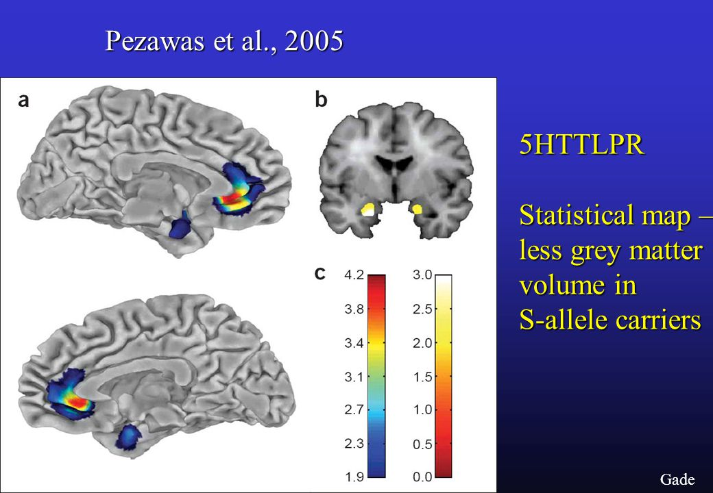 Gade Pezawas et al., 2005 5HTTLPR Statistical map – less grey matter volume in S-allele carriers