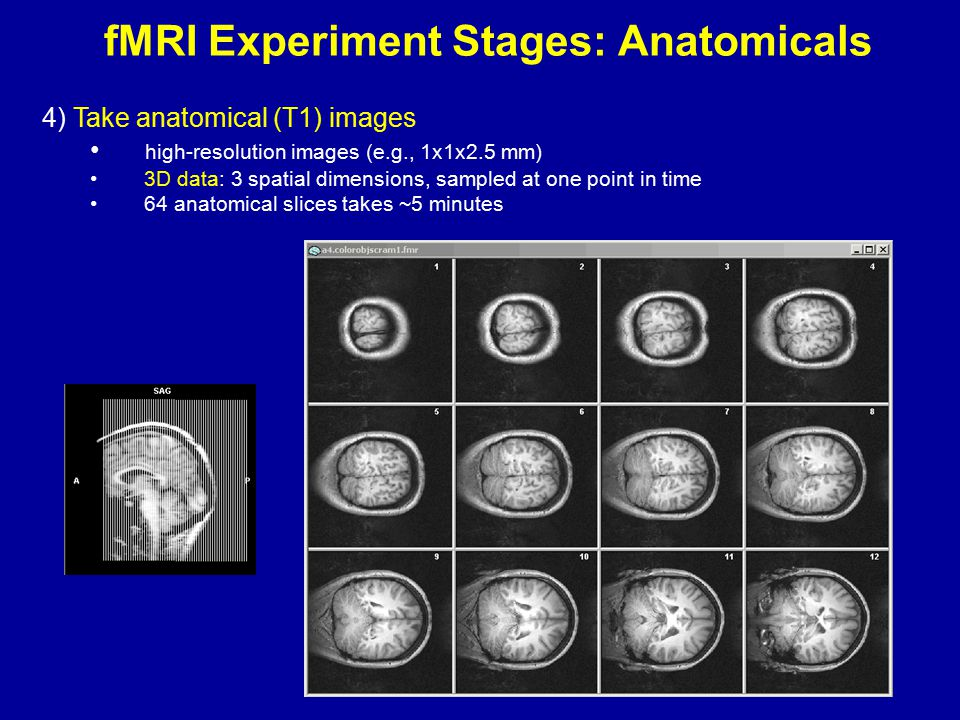 fMRI Experiment Stages: Anatomicals 4) Take anatomical (T1) images high-resolution images (e.g., 1x1x2.5 mm) 3D data: 3 spatial dimensions, sampled at