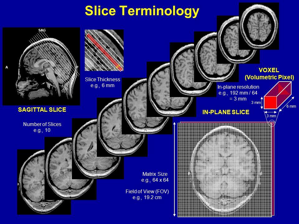 Slice Thickness e.g., 6 mm Number of Slices e.g., 10 SAGITTAL SLICE IN-PLANE SLICE Field of View (FOV) e.g., 19.2 cm VOXEL (Volumetric Pixel) 3 mm 6 m