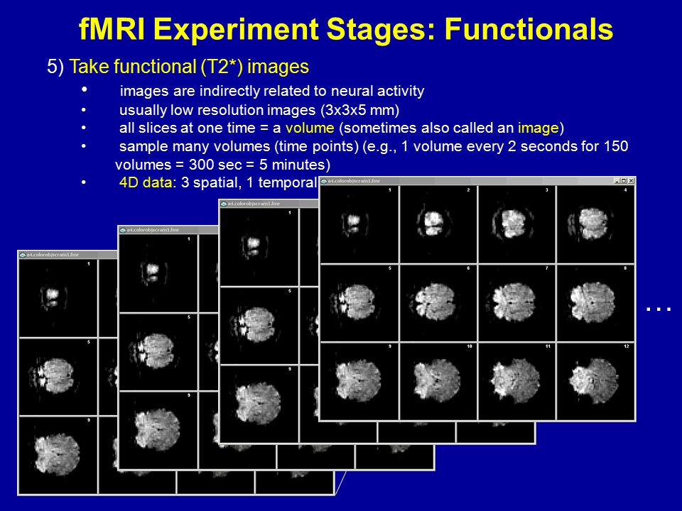 fMRI Experiment Stages: Functionals 5) Take functional (T2*) images images are indirectly related to neural activity usually low resolution images (3x