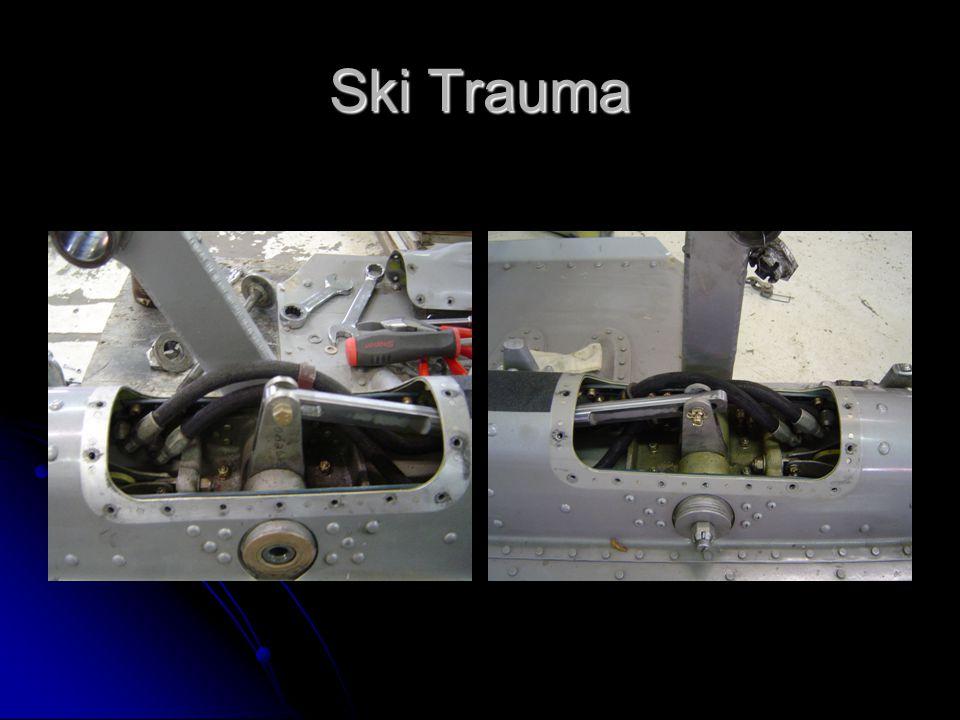 Ski Trauma