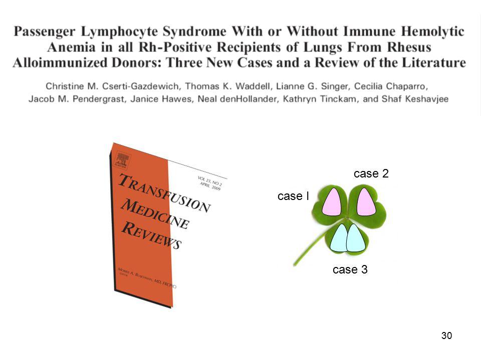 30 case I case 2 case 3