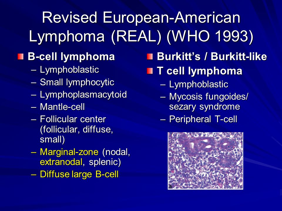 Revised European-American Lymphoma (REAL) (WHO 1993) B-cell lymphoma –Lymphoblastic –Small lymphocytic –Lymphoplasmacytoid –Mantle-cell –Follicular center (follicular, diffuse, small) –Marginal-zone (nodal, extranodal, splenic) –Diffuse large B-cell Burkitt's / Burkitt-like T cell lymphoma –Lymphoblastic –Mycosis fungoides/ sezary syndrome –Peripheral T-cell