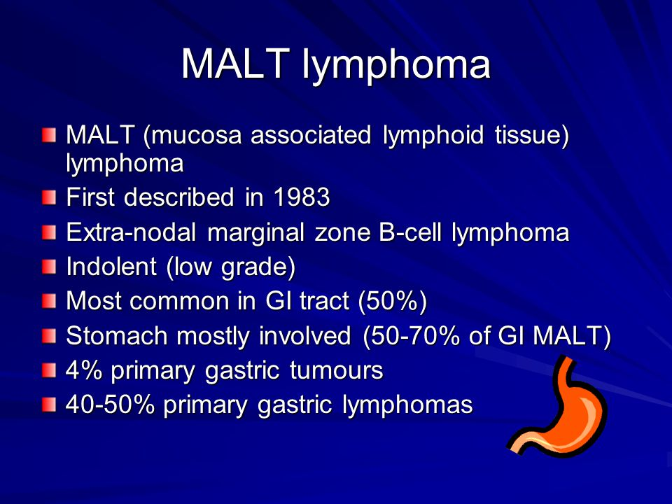 MALT lymphoma MALT (mucosa associated lymphoid tissue) lymphoma First described in 1983 Extra-nodal marginal zone B-cell lymphoma Indolent (low grade) Most common in GI tract (50%) Stomach mostly involved (50-70% of GI MALT) 4% primary gastric tumours 40-50% primary gastric lymphomas