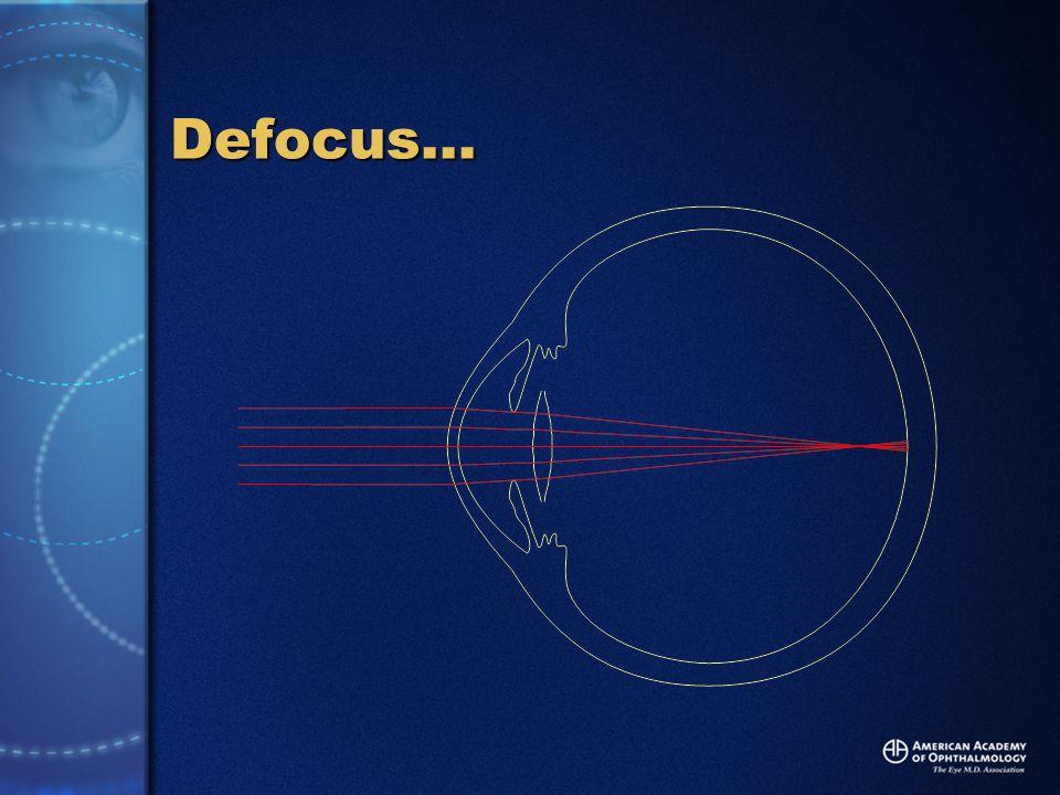 Defocus…