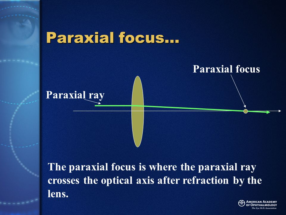 Positive spherical aberration… Paraxial focus Paraxial ray Off axis ray (positive sa) When an off-axis ray is refracted by the lens and crosses the axis in FRONT of the paraxial focal point, the ray exhibits POSITIVE spherical aberration.