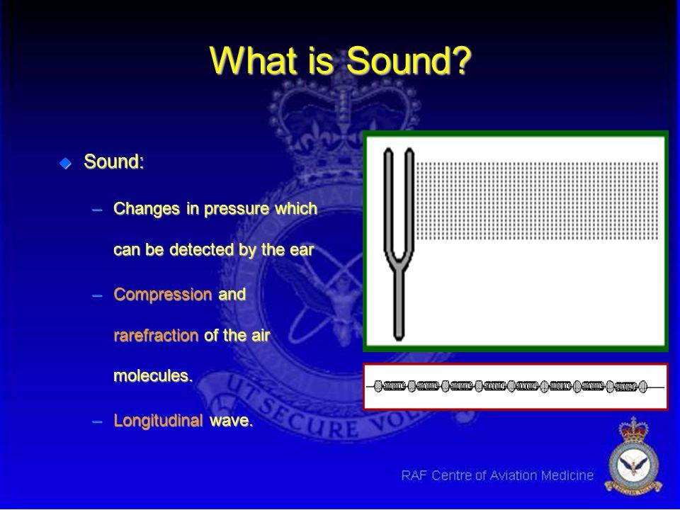Introduction to Acoustics u Basic Acoustics decibel (dB) u Noise & man: Frequency & loudness response u Noise and Communications