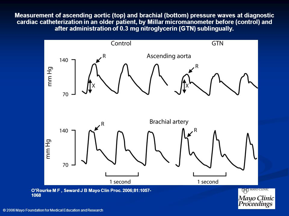 Measurement of ascending aortic (top) and brachial (bottom) pressure waves at diagnostic cardiac catheterization in an older patient, by Millar micromanometer before (control) and after administration of 0.3 mg nitroglycerin (GTN) sublingually.