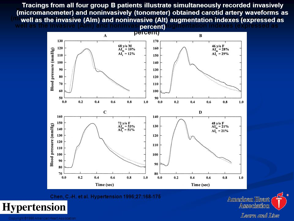 Copyright ©1996 American Heart Association Chen, C.-H. et al. Hypertension 1996;27:168-175 Tracings from all four group B patients illustrate simultan
