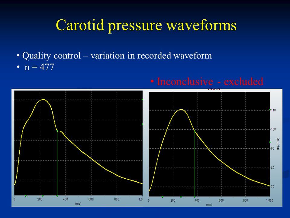 Carotid pressure waveforms Quality control – variation in recorded waveform n = 477 Inconclusive - excluded
