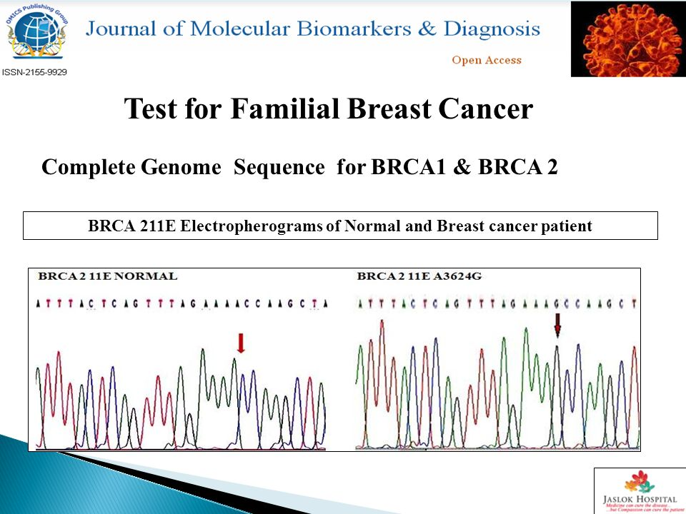 Complete Genome Sequence for BRCA1 & BRCA 2 Test for Familial Breast Cancer BRCA 211E Electropherograms of Normal and Breast cancer patient