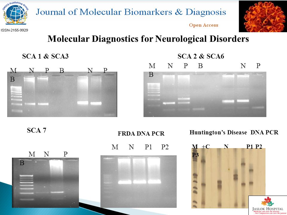 Molecular Diagnostics for Neurological Disorders SCA 1 & SCA3SCA 2 & SCA6 SCA 7 Huntington's Disease DNA PCR FRDA DNA PCR M N P B N P B M N P B M N P1 P2 M +C N P1 P2 P3
