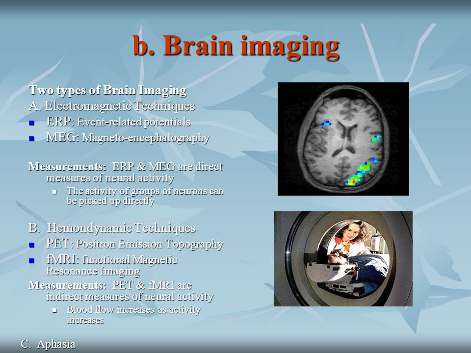 b. Brain imaging Two types of Brain Imaging A.