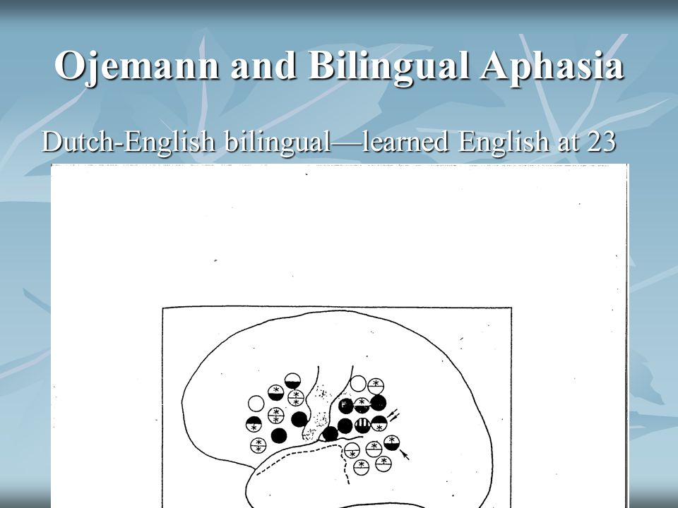 Ojemann and Bilingual Aphasia Dutch-English bilingual—learned English at 23 when came to live in U.S.-surgery at 30