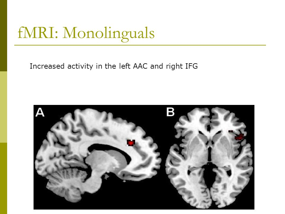 fMRI: Monolinguals Increased activity in the left AAC and right IFG